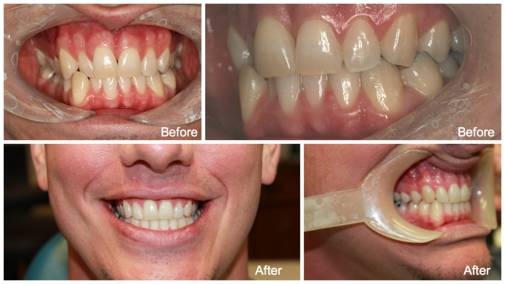 ClearCorrect Teeth Whitening