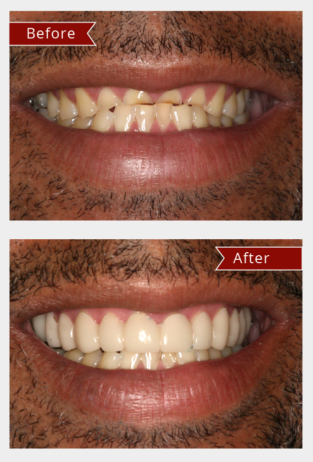 Snap on smile before and after treatment