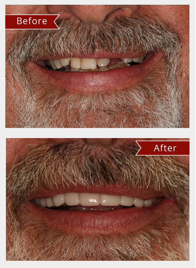 Snap on smile before and after teeth straightening treatment