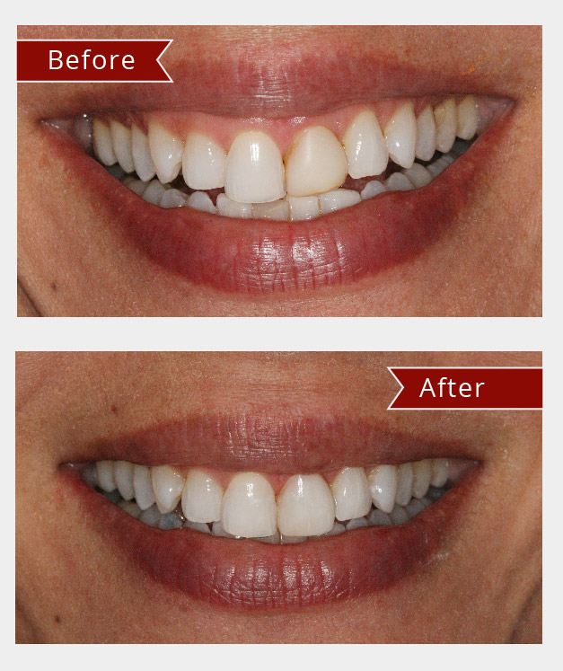 Teeth Straightening new fairfield